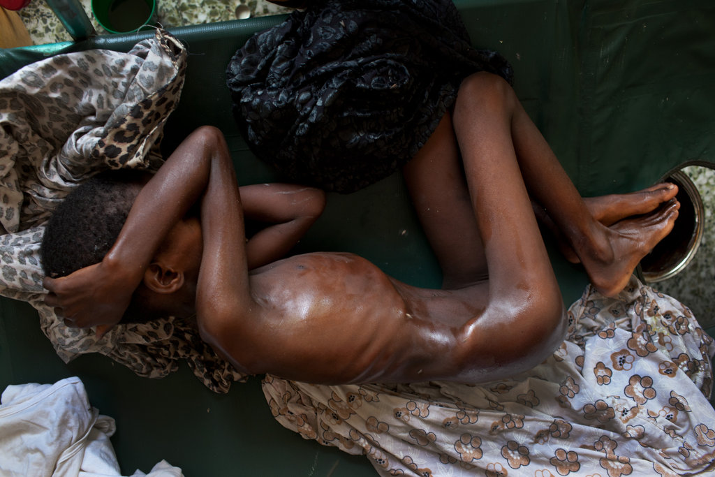 Boy dying of starvation in somalia