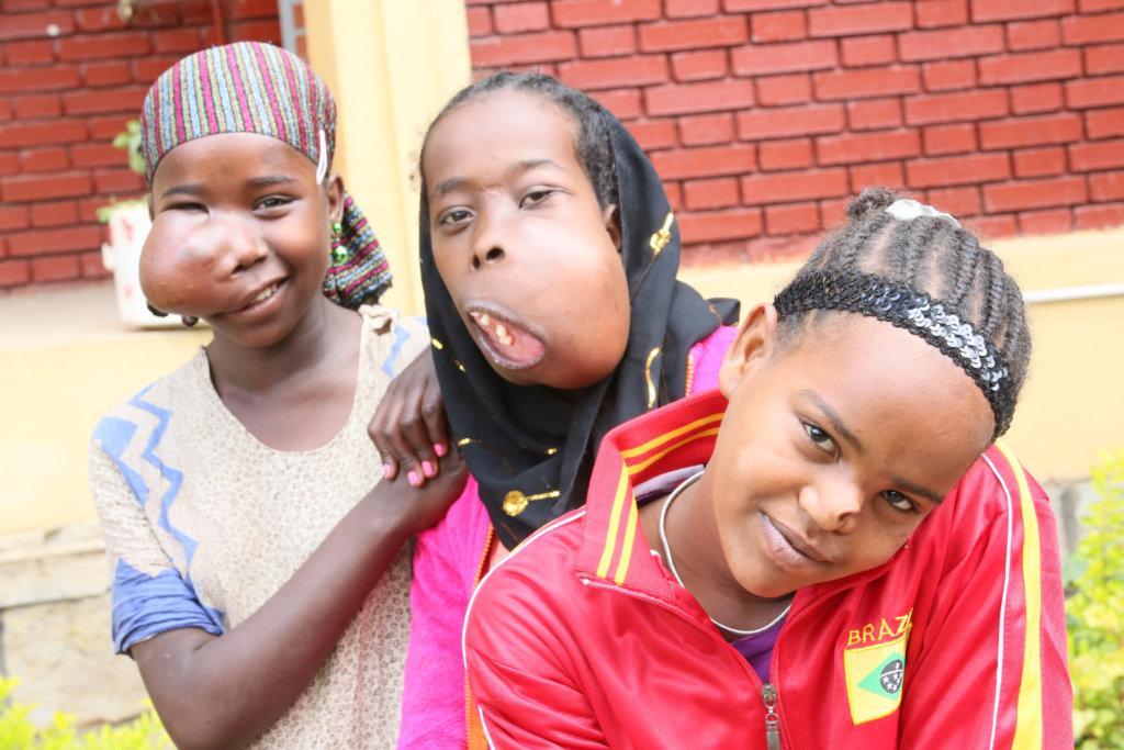 ethiopian-women-that-god-deformed